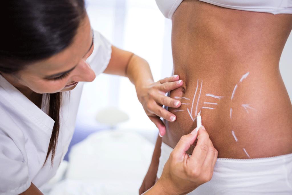 خدمة علاج السيلوليت بتقنيّة الكوماشيب - Medical Glamor عيادات غلامور