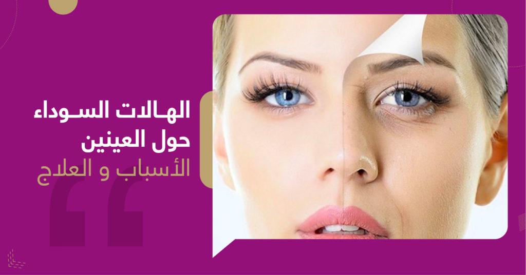 الهالات السوداء حول العينين أسباب و العلاج  - عيادات غلامور Mdical Glamor